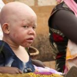 An albino child sits outside the courtroom in Ruyigi, eastern Burundi, May 28, 2009. Prosecutors in Burundi on Thursday asked for life sentences for three people on trial for allegedly murdering albinos to sell their body parts for use in witchcraft.   REUTERS/Jean Pierre Aime Harerimana (BURUNDI CRIME LAW SOCIETY) - RTXOW93