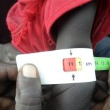 malnutrition.fao